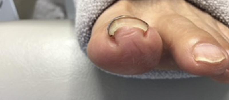 巻き爪・変形した爪